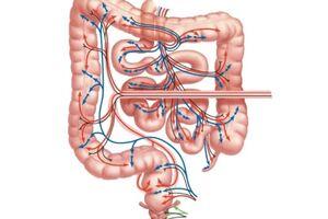 Непроходимость толстой кишки: причини виникнення та основні симптоми, способи лікування захворювання