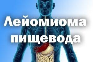 Лейомиома пищевода: причины возникновения и основные симптомы, способы лечения заболевания