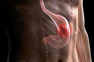 Лейомиома желудка: причини виникнення та основні симптоми, способи лікування захворювання