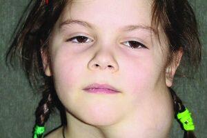 Лимфангиома: причини виникнення та основні симптоми, способи лікування захворювання
