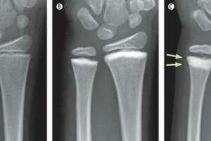 Врожденный остеосклероз (Мраморная болезнь): причины возникновения и основные симптомы, способы лечения заболевания