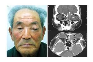 Мукоцеле лобной пазухи: причини виникнення та основні симптоми, способи лікування захворювання