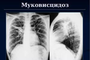 Муковисцидоз легких: причини виникнення та основні симптоми, способи лікування захворювання