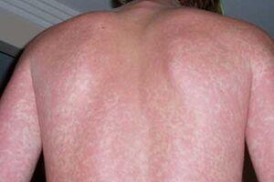 Лихорадка денге: причини виникнення та основні симптоми, способи лікування захворювання