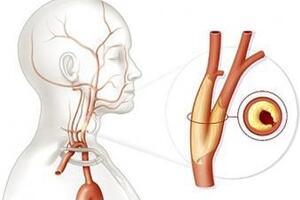 Окклюзия сонных артерий: причины возникновения и основные симптомы, способы лечения заболевания