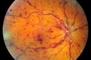 Окклюзия центральной вены сетчатки: причини виникнення та основні симптоми, способи лікування захворювання