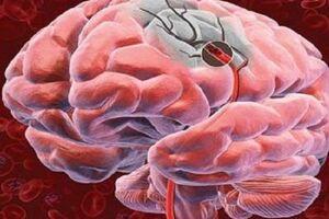 Оливопонтоцеребеллярные дегенерации: причины возникновения и основные симптомы, способы лечения заболевания