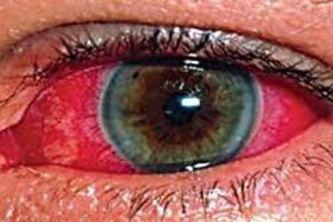 Ожоги глаз: причини виникнення та основні симптоми, способи лікування захворювання