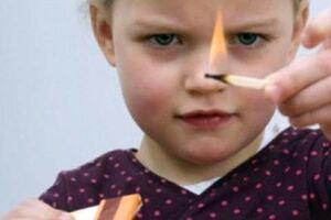 Ожоги у детей: причини виникнення та основні симптоми, способи лікування захворювання
