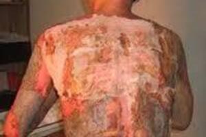 Ожоговая болезнь: причины возникновения и основные симптомы, способы лечения заболевания