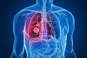 Рак бронха: причини виникнення та основні симптоми, способи лікування захворювання