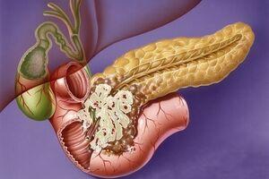 Рак головки поджелудочной железы: причини виникнення та основні симптоми, способи лікування захворювання