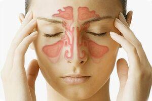 Рак полости носа и околоносовых пазух: причини виникнення та основні симптоми, способи лікування захворювання