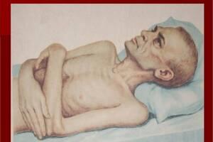 Раковая кахексия: причини виникнення та основні симптоми, способи лікування захворювання