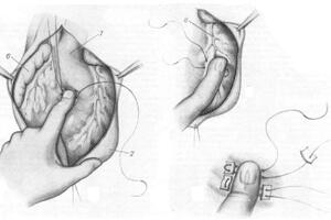 Ранения сердца: причины возникновения и основные симптомы, способы лечения заболевания