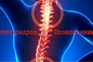 Остеохондроз позвоночника: причини виникнення та основні симптоми, способи лікування захворювання