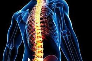 Остеосклероз: причини виникнення та основні симптоми, способи лікування захворювання