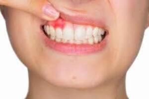 Остеомиелит челюсти: причины возникновения и основные симптомы, способы лечения заболевания