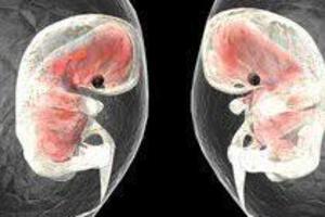 Осложнения ЭКО: причины возникновения и основные симптомы, способы лечения заболевания