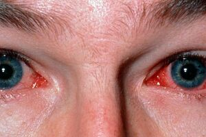Острый бактериальный конъюнктивит: причини виникнення та основні симптоми, способи лікування захворювання