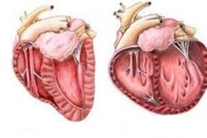 Острое расширение сердца: причини виникнення та основні симптоми, способи лікування захворювання