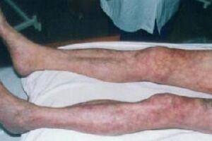 Острая окклюзия сосудов конечностей: причины возникновения и основные симптомы, способы лечения заболевания