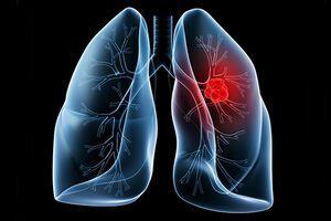 Острая пневмония: причины возникновения и основные симптомы, способы лечения заболевания