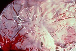 Отогенные внутричерепные осложнения: причини виникнення та основні симптоми, способи лікування захворювання