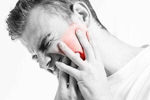 Острый пульпит: причини виникнення та основні симптоми, способи лікування захворювання
