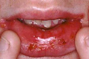 Острый стоматит: причины возникновения и основные симптомы, способы лечения заболевания