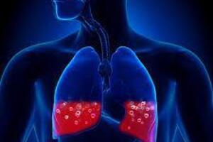 Отек легких: причини виникнення та основні симптоми, способи лікування захворювання