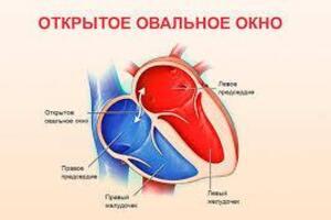 Открытое овальное окно: причини виникнення та основні симптоми, способи лікування захворювання