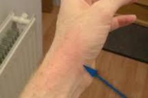 Палиндромный ревматизм: причини виникнення та основні симптоми, способи лікування захворювання