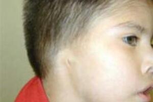Отсутствие уха и/или мочки: причини виникнення та основні симптоми, способи лікування захворювання