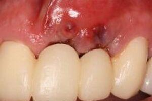 Отторжение зубного импланта: причины возникновения и основные симптомы, способы лечения заболевания