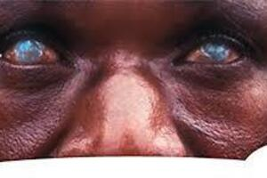 Онхоцеркоз: причины возникновения и основные симптомы, способы лечения заболевания