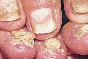 Ониходистрофия: причини виникнення та основні симптоми, способи лікування захворювання