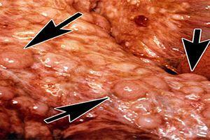 Опухоли брюшины: причини виникнення та основні симптоми, способи лікування захворювання
