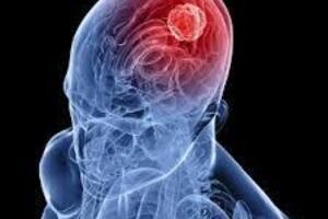 Опухоли гипофиза: причины возникновения и основные симптомы, способы лечения заболевания