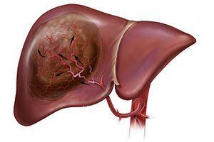 Опухоли печени: причини виникнення та основні симптоми, способи лікування захворювання