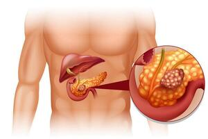 Опухоли поджелудочной железы: причини виникнення та основні симптоми, способи лікування захворювання