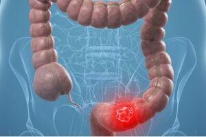 Опухоли прямой кишки: причины возникновения и основные симптомы, способы лечения заболевания