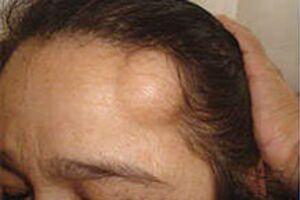 Опухоли сальных желез: причини виникнення та основні симптоми, способи лікування захворювання