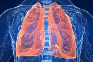 Разрыв легкого: причини виникнення та основні симптоми, способи лікування захворювання