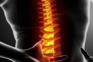 Опухоли спинного мозга: причины возникновения и основные симптомы, способы лечения заболевания