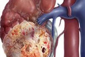 Опухоль Вильмса: причини виникнення та основні симптоми, способи лікування захворювання