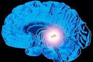 Опухоль эпифиза: причини виникнення та основні симптоми, способи лікування захворювання