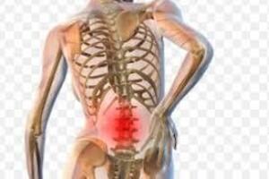 Опухоль конского хвоста: причини виникнення та основні симптоми, способи лікування захворювання