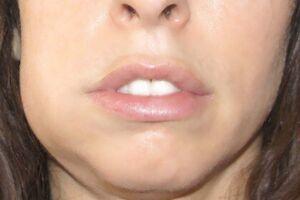 Опухоли челюстей: причины возникновения и основные симптомы, способы лечения заболевания