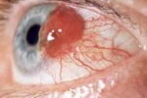 Опухоли хориоидеи: причини виникнення та основні симптоми, способи лікування захворювання